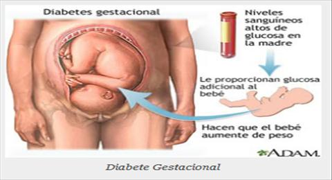 diabete gestacional