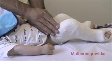 tratamento pé torto em criança